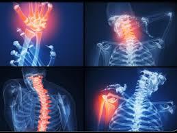 rheumatology2